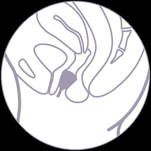 Uporaba menstrualne skodelice